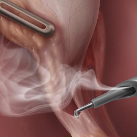 Laparoscopic smoke evacuation surgical device system