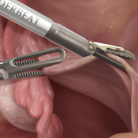 Fully-integrated bipolar and ultrasonic surgical instruments used in a total laparoscopic hysterectomy
